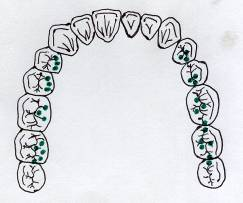 On_the_optimal_occlusal_relationships_5
