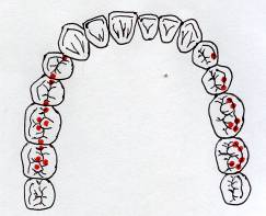 On_the_optimal_occlusal_relationships_7